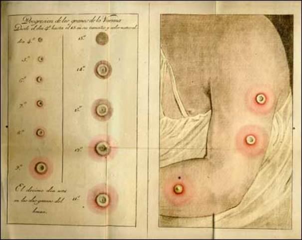 Primer vacuna
