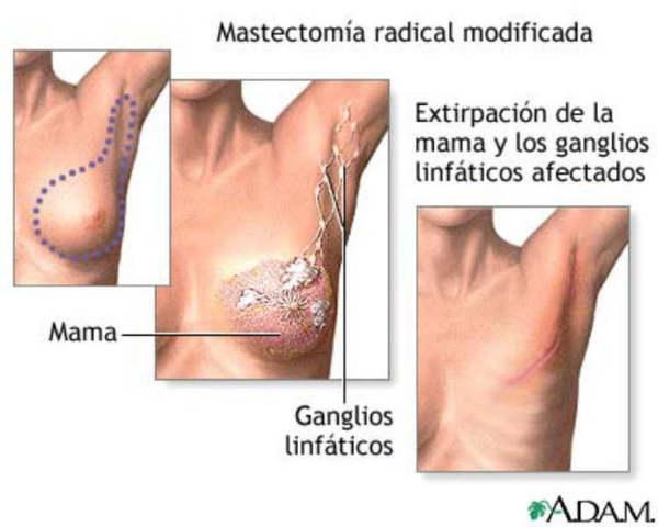 se recurre a la mastectomia