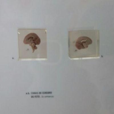 Etapa Embrionaria  timeline