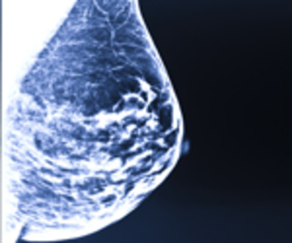 Intraoperative Radiation Therapy for Breast Cancer