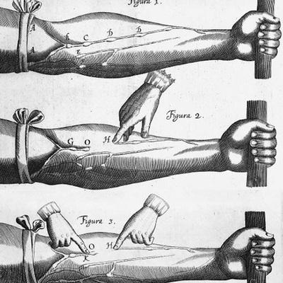 History of Medicine: 16th Century - 18th Century timeline
