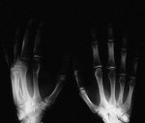 Roentgen discovered X-Rays