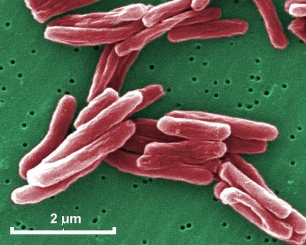Descubrimieno del Mycobacterium tuberculosis