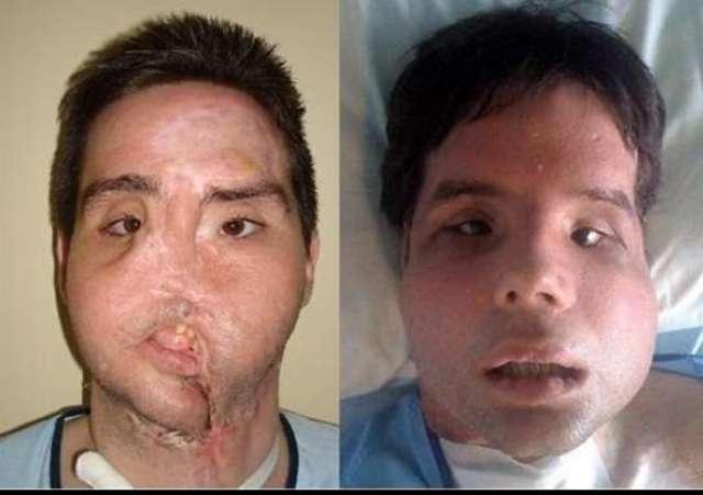 Trasplante de cara completa