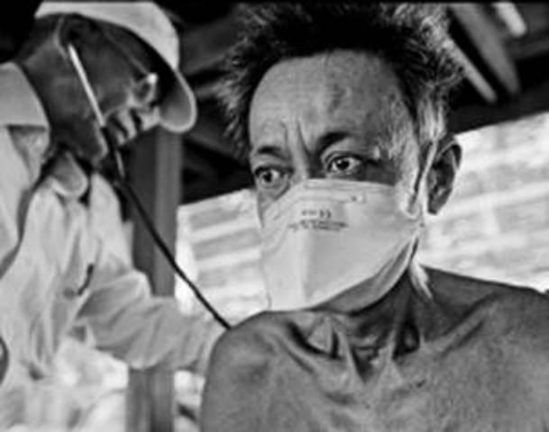 Se identifica el síndrome de inmunodeficiencia adquirida (sida)