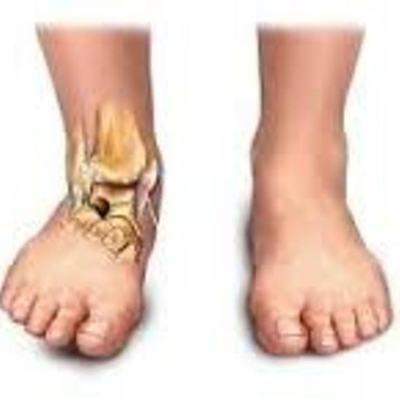 Tiempos de reparación de los diversos tejidos: óseo, muscular, tendinoso y ligamentoso. timeline