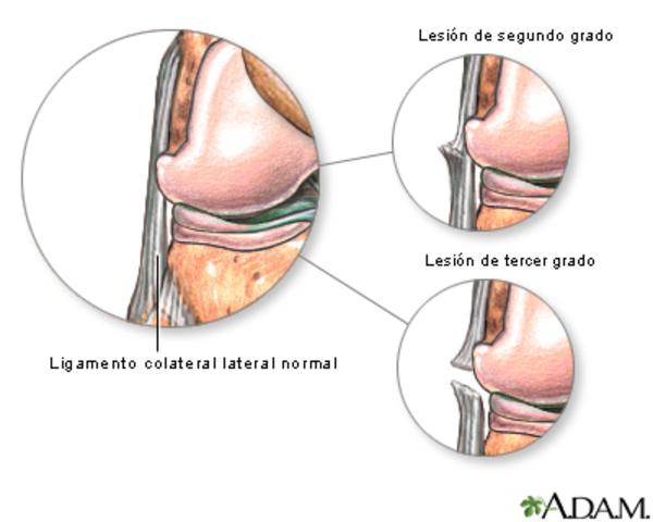 Lesión ligamentosa
