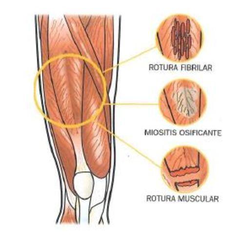 Tiempos de reparación de los diversos tejidos: óseo, muscular ...