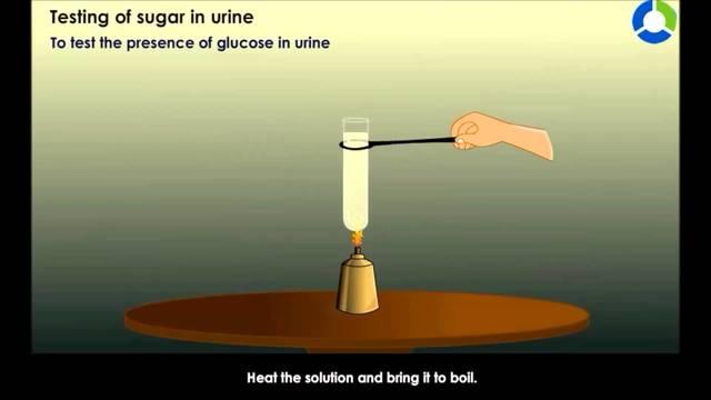 Urine Tests