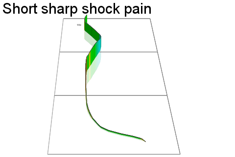 3D Elevation profile image for Short sharp shock pain