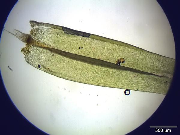 Aulacomnium Moss (Aulacomnium Palustre) https://www.sagebud.com/aulacomnium-moss-aulacomnium-palustre