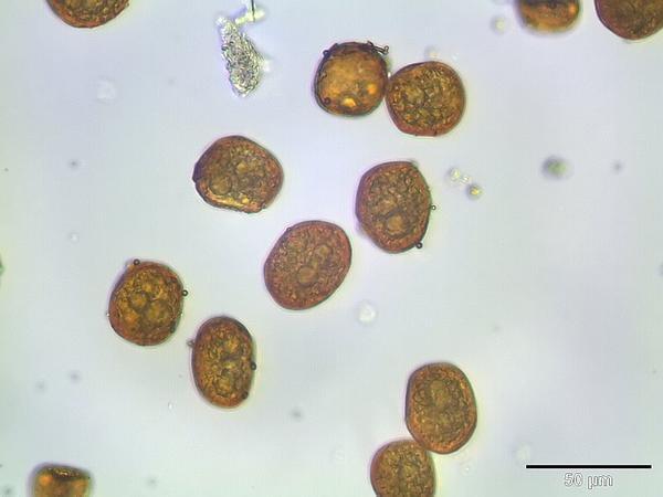Bartramia Moss (Bartramia) https://www.sagebud.com/bartramia-moss-bartramia/