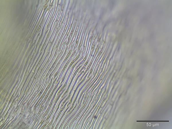 Hamatocaulis Moss (Hamatocaulis Vernicosus) https://www.sagebud.com/hamatocaulis-moss-hamatocaulis-vernicosus/
