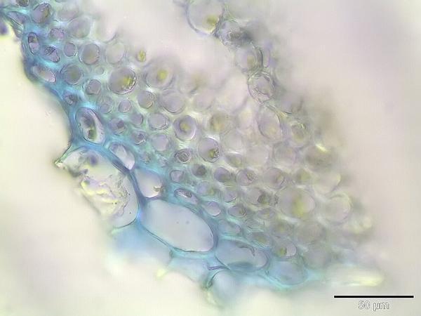Sphagnum (Sphagnum Fimbriatum) https://www.sagebud.com/sphagnum-sphagnum-fimbriatum