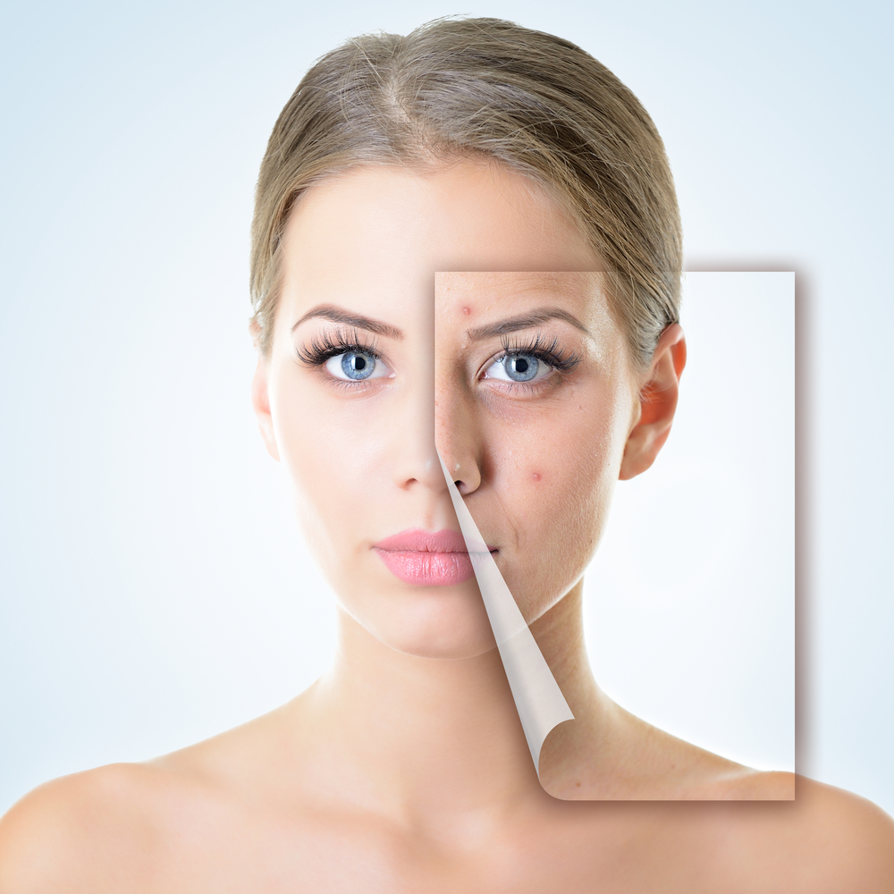 Treat Skin Imperfections With Regular Facials