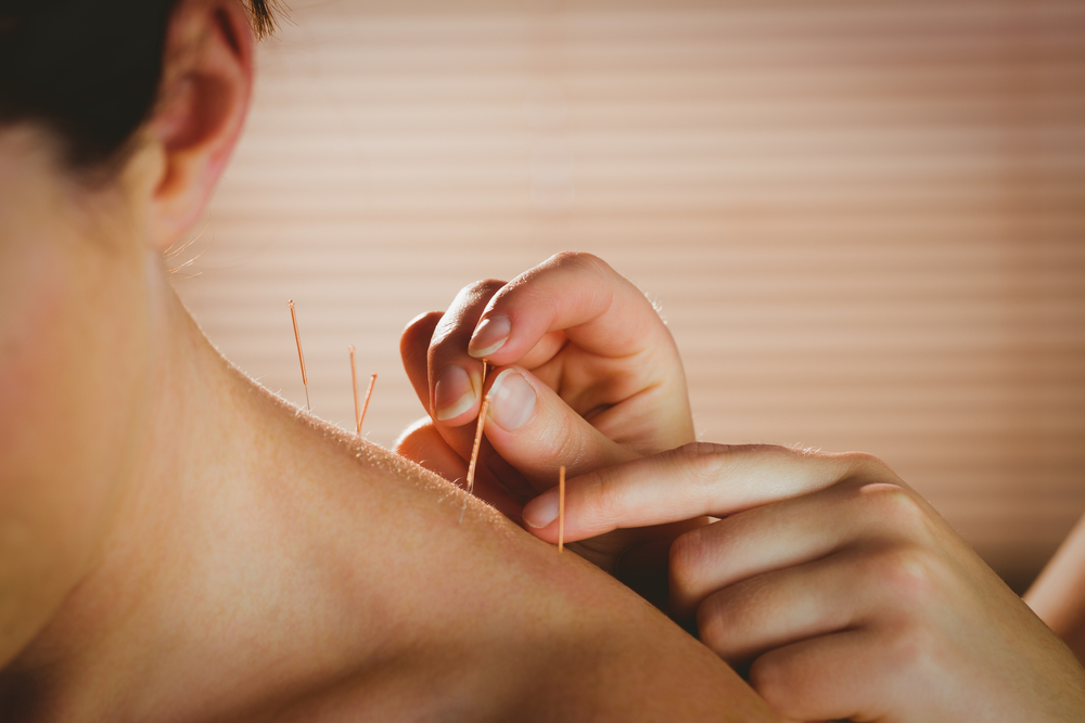 Get Help for Pain and Stress-Related Symptoms with Acupuncture
