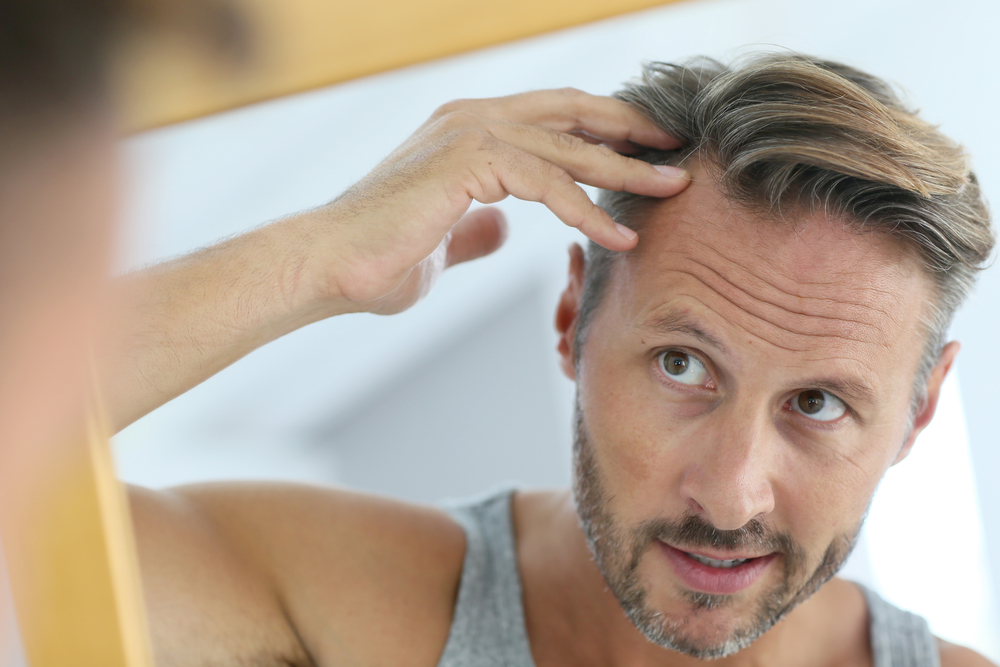 Hair Loss Restoration in Houston