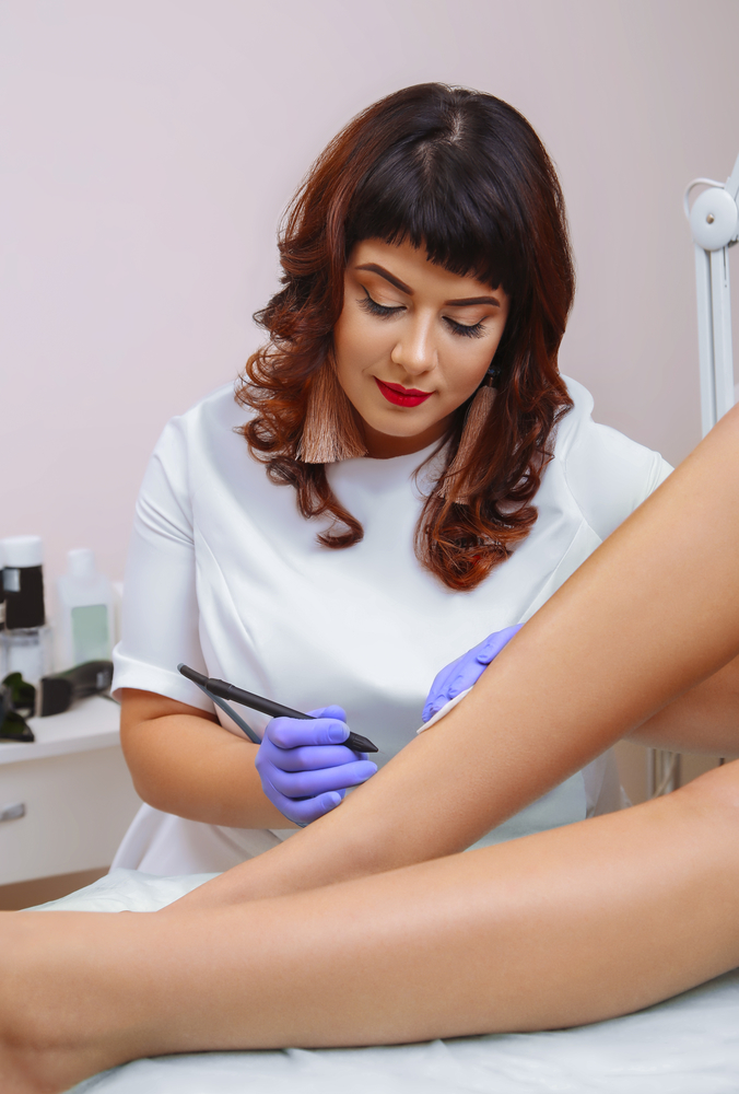 Fade Spider Veins With Sclerotherapy Treatment