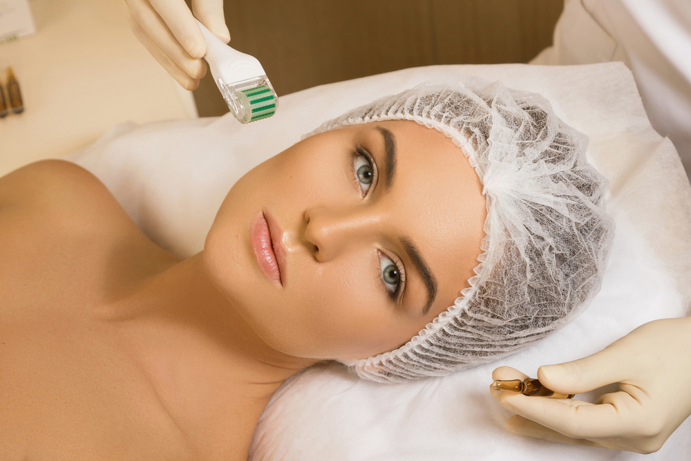 Micro-needling for Glowing Skin