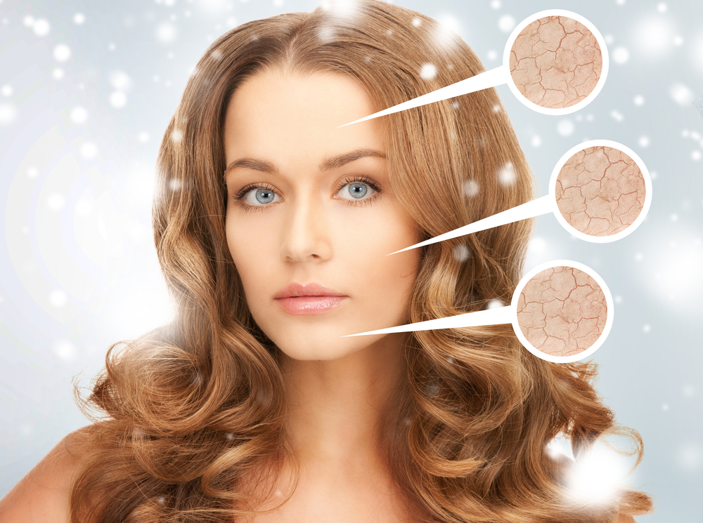 Winter Facials Combat Dry Winter Skin