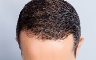 Hair Transplant and Scalp Micropigmentation?