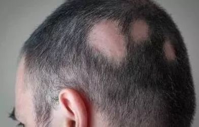 Alopecia Areata Treatments & Solutions