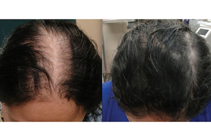Help for Hair Loss – an Effective Hair Loss Solution
