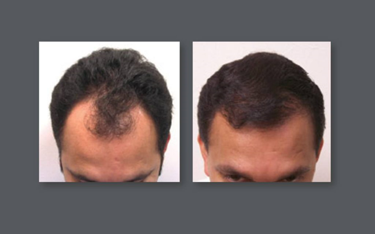 Natural Hair Replacement with NeoGraft® Technology