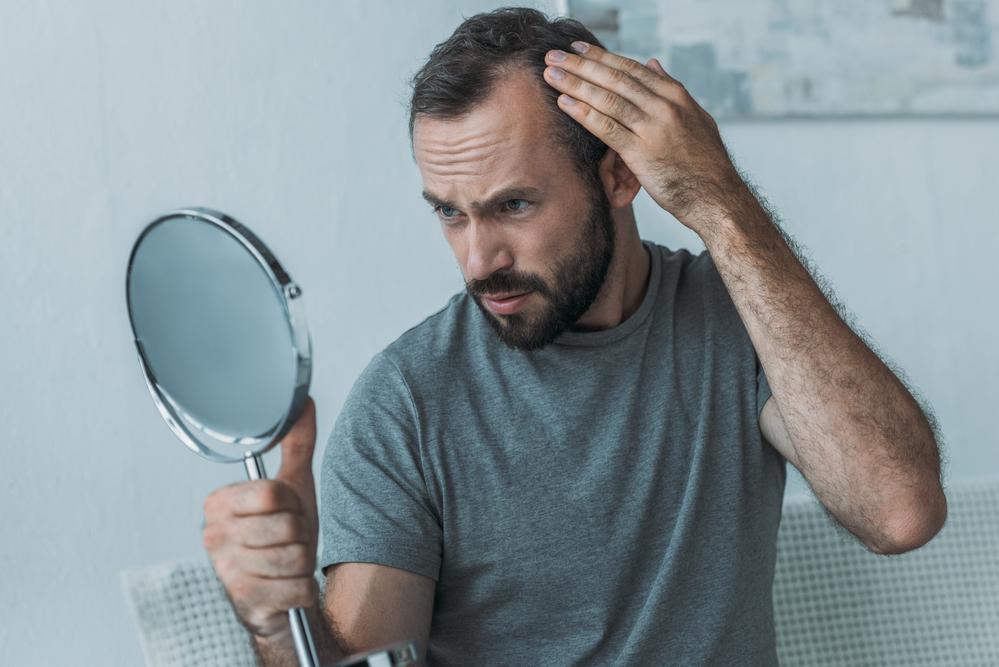Understanding Hair Loss - for Men and Women
