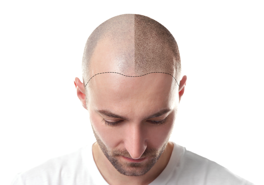 Get the Appearance of Natural Hair with Scalp Micropigmentation
