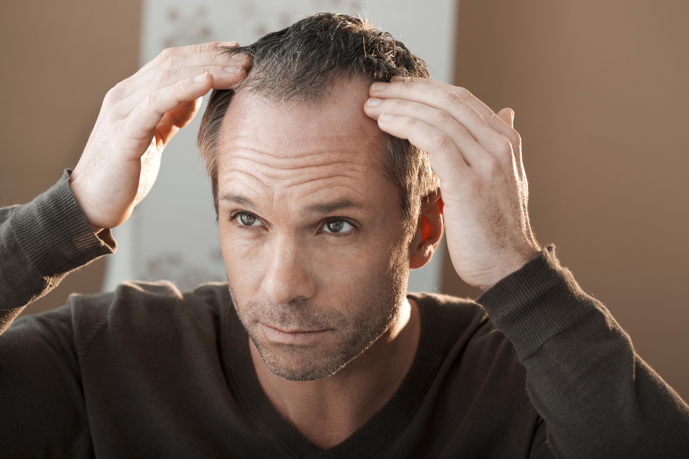 Avoid Unneeded Hair Loss - Ditch the Hat (for Good!)
