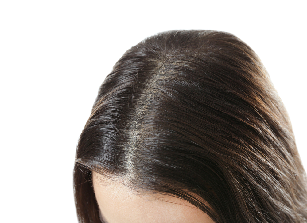 Why You Need Scalp Treatments for Healthy Hair