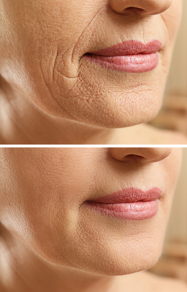 Look Younger Instantly with Microcurrent Facial Treatments
