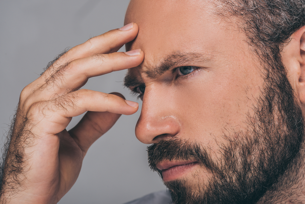Are People with High Foreheads More Prone to Hair Loss?