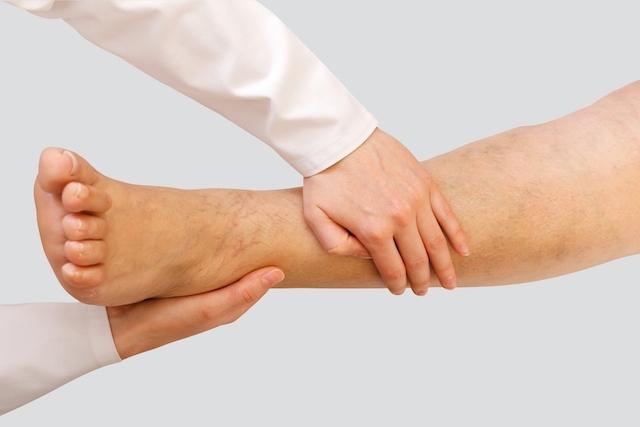 Fraqueza nas pernas: previna-se