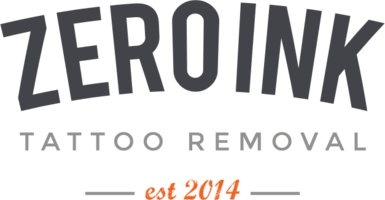 Zero ink Tattoo Removal