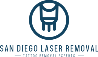 San Diego Laser Removal