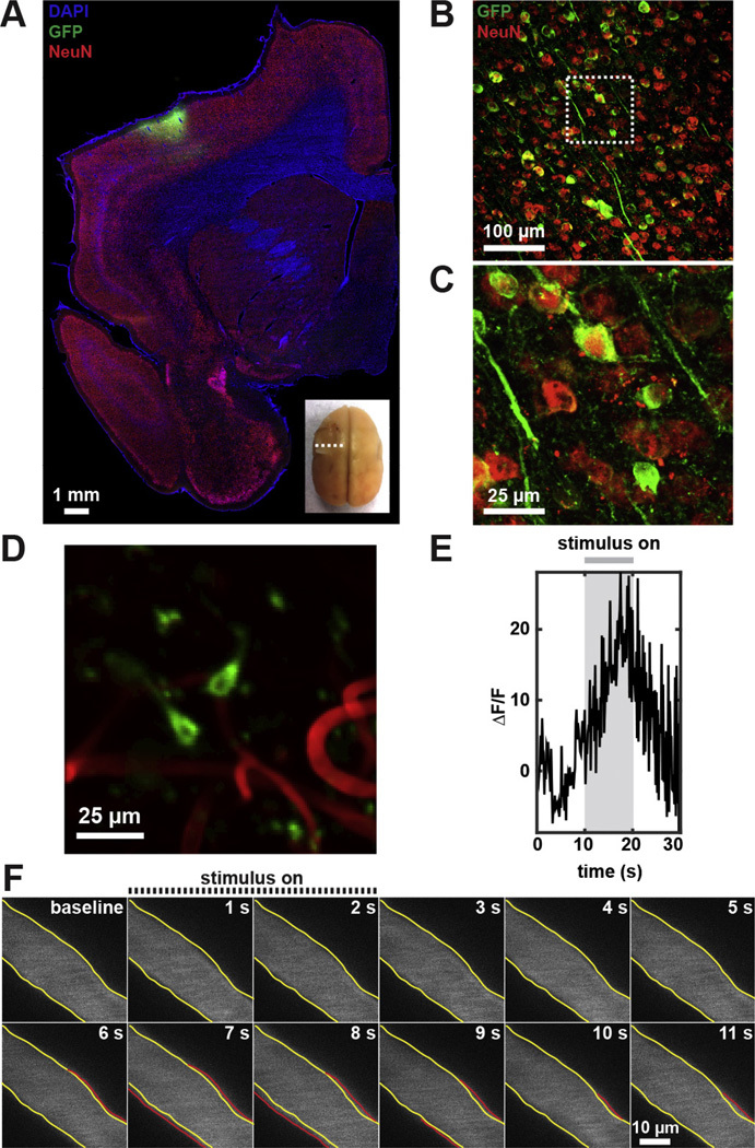 Two-photon imaging of cerebral hemodynamics and neural