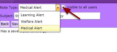 Step 3: Select the Alert Type