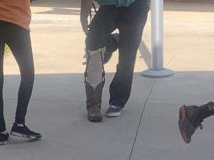 Don't have a leg to stand on? Artificial Leg project in STEM/Robotics
