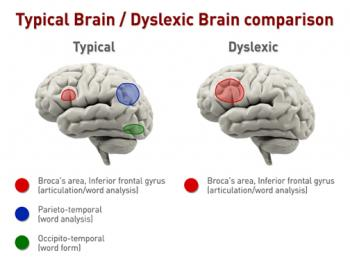 Dyslexic Brain vs. Typical Brain