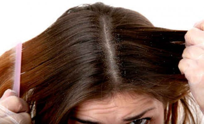 علاج قشرة الشعر الطبيعي