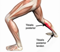 Squat , Tibialis Posterior Tendonitis and Feet Turning Out