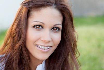 Orange County orthodontist braces