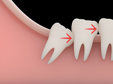orange county wisdom tooth removal