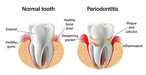 fullerton periodontal and gum disease treatment