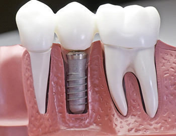 dental implants santa ana ca
