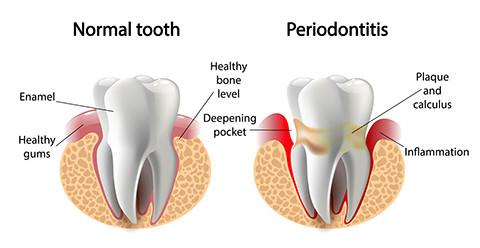 periodontal gum disease santa ana