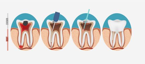 endodontist santa ana root canals treatment