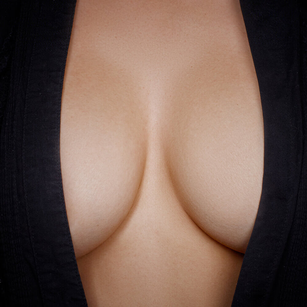 Breast Aesthetics a front view of ample, symmetrical breasts in a deep cut black V-neck shirt